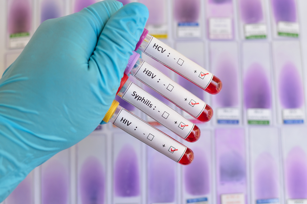 Sexually Transmitted Disease Testing