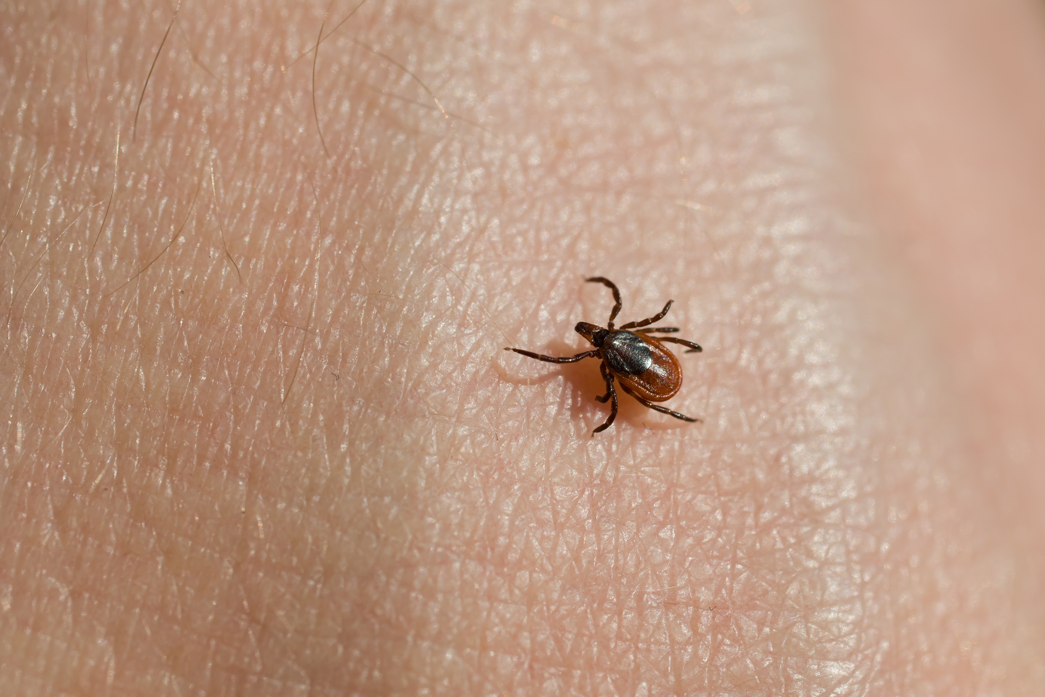 how to avoid tick bites and lyme disease this summer patient